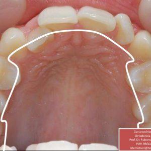 Ortodoncia Lingual En Medellín 12