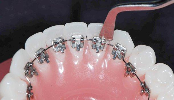 Ortodoncia Lingual En Medellín 5