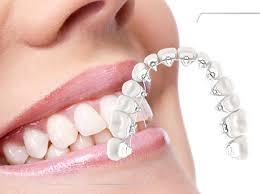 Ortodoncia Lingual En Medellín 7