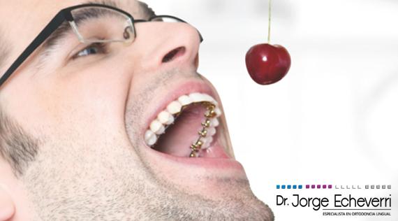 Ortodoncia Lingual en Medellín