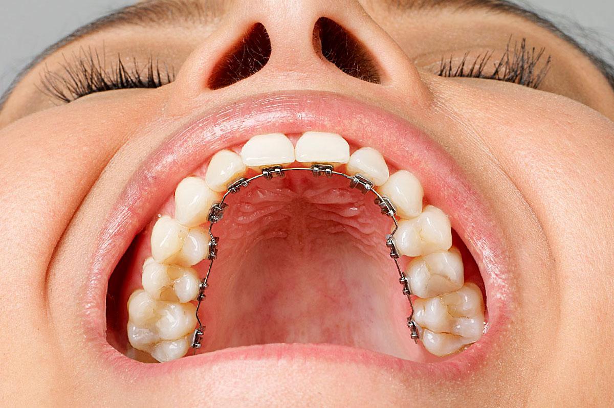 Ortodoncia Lingual En Medellín 4